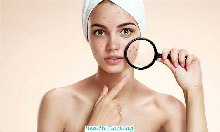 DIY Miracle Face Wash Gel and Moisturizer For Acne Beauty Tips Natural Skin Care Women  natural skin care miracle how to make moisturizer how to make cleanser for acne how to make cleanser DIY skin care DIY Miracle Face Wash Gel and Moisturizer For Acne