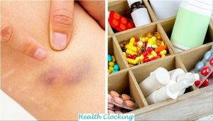 6 Health Problems That Can Lead to Bruising On The Body Health and Wellness  problems health bruising
