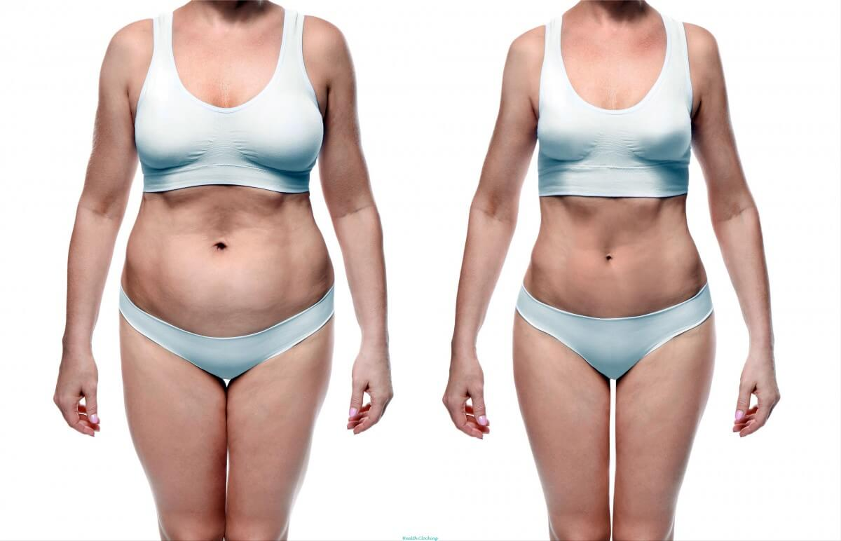 5 Types of Abdomen And How to Get Rid of Them Health and Wellness  weakening exercises weakening military diet diet plans to lose weight fast for women diet plans to lose weight fast diet plans to lose weight diet fast belly fat belly diet abdominal distension abdomen diet