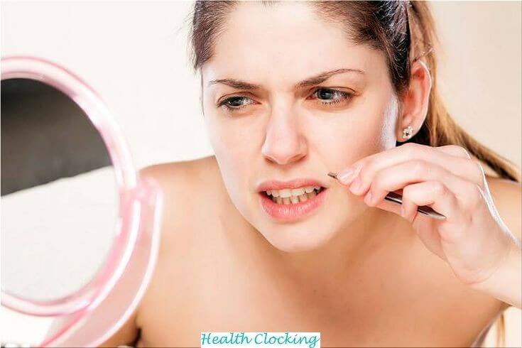 How To Get Rid Of Unwanted Facial Hair Beauty Tips Women  how to get rid of unwanted facial hair on a woman how to get rid of unwanted facial hair naturally and permanently how to get rid of unwanted facial hair forever how to get rid of unwanted facial hair for good How to get rid of unwanted facial hair