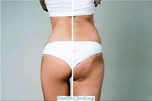 Get rid of cellulite in just 30 days Beauty Tips Weakening  reduce cellulite in 30 days cellulite free in 30 days cellulite 30 days cellulite 30 days cellulite cream